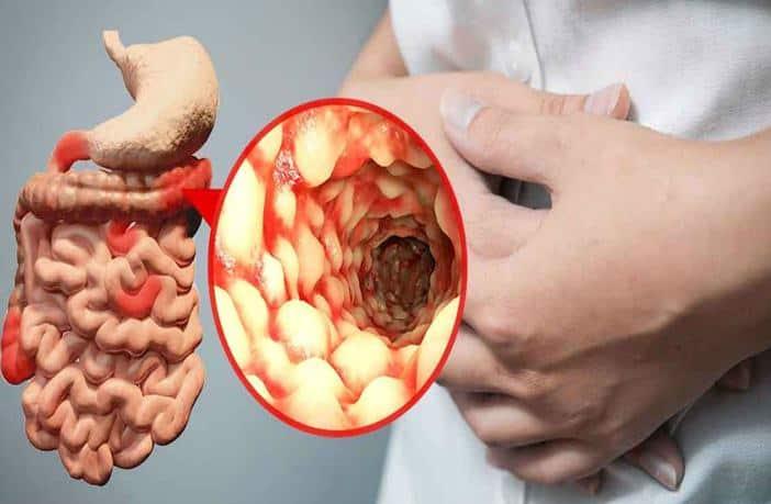 Resultado de imagen de crohn